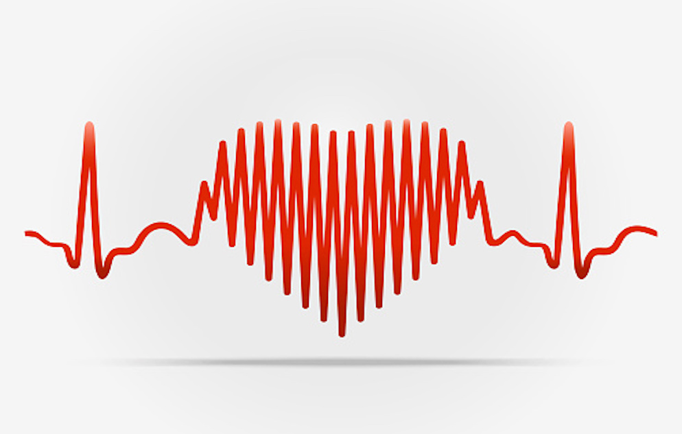 EKG of heart beat, with part of the EKG forming the shape of a heart