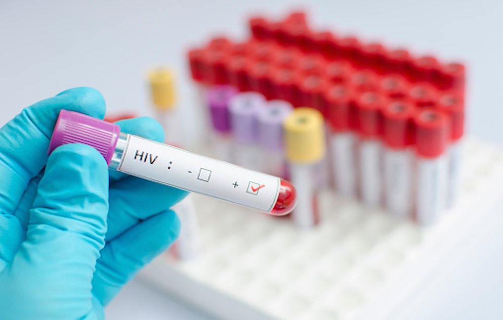 HIV blood sample vial with a label showing a check mark over a box indicating a positive result.