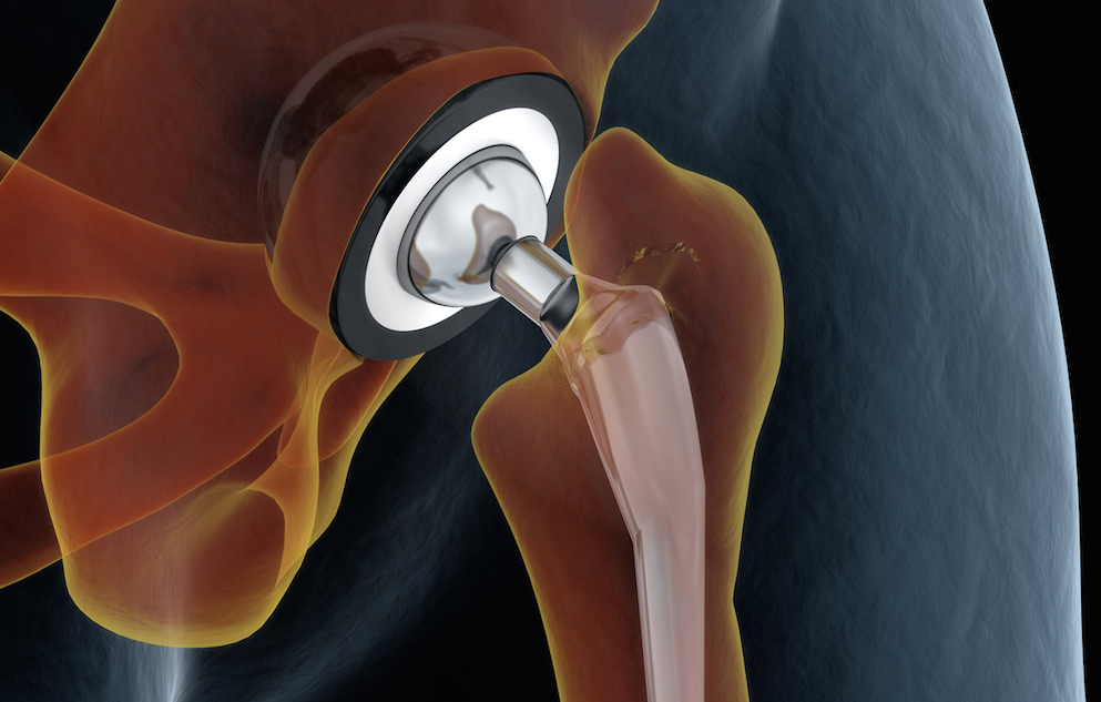 illustration of a hip joint replacement