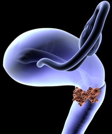 Digital representation of cervical cancer