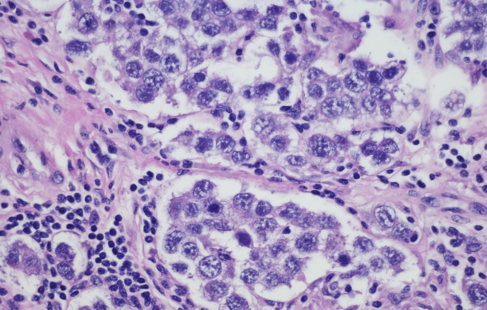 Micrograph of ovarian cancer cells