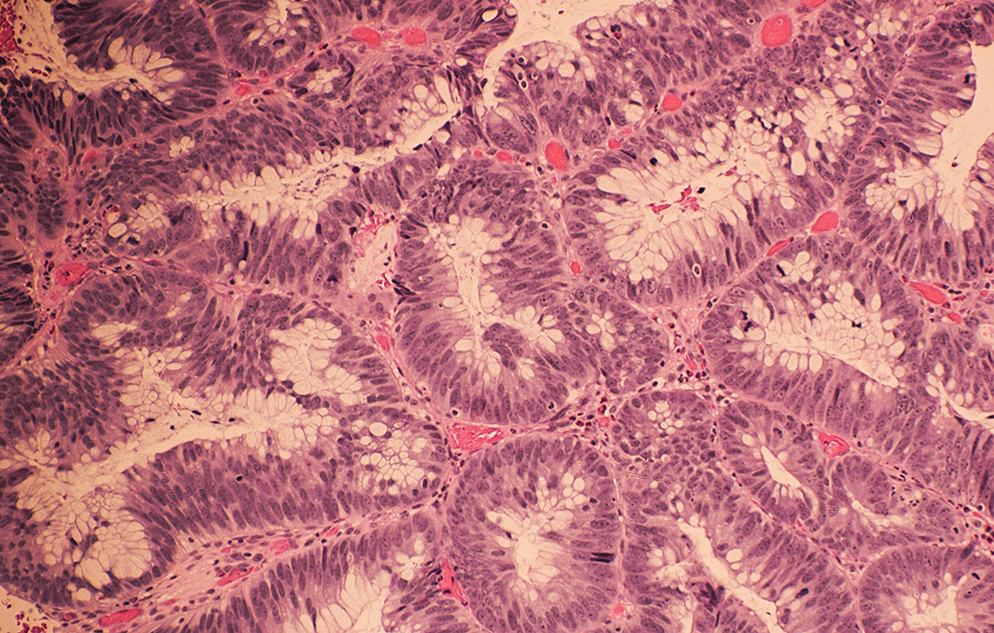 Microscopic image of colonic adenocarcinoma